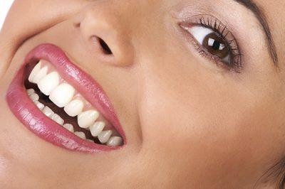 بهترین راه سفید کردن دندان ها در خانه