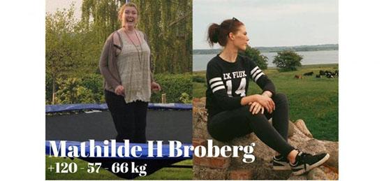 متیلد بروبرگ دختر چاق و زشتی که با تلاش مانکن شد