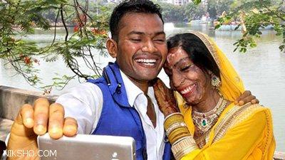 ازدواج قربانی اسید پاشی نوید زندگی تازه همراه با شادی