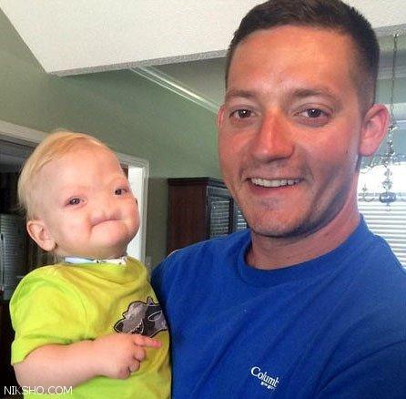 کودک بدون بینی پس از 2 سال خنده فوت کرد
