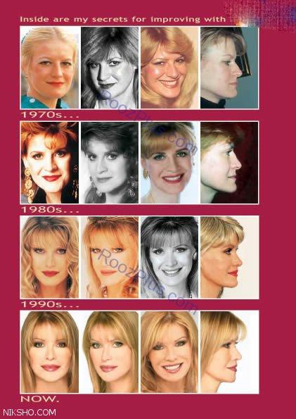 رکورد 52 عمل جراحی زیبایی توسط این زن آمریکایی