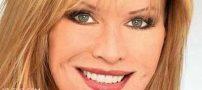 رکورد ۵۲ عمل جراحی زیبایی توسط این زن آمریکایی