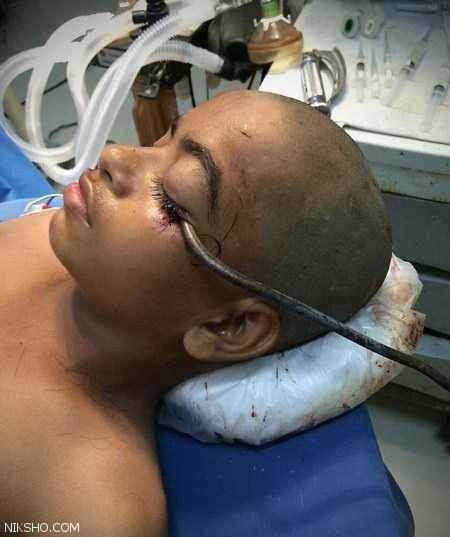 زنده ماندن این پسر با وجود فرو رفتن قلاب 15 سانتی در چشم