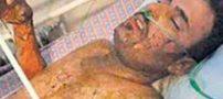 ماموران شهرداری کارگری را در خواب آتش زدند