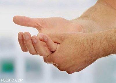مشکلی به نام عرق کف دست و پا و راه درمان قطعی