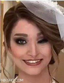 دختر زیبای قربانی اسید پاشی در اصفهان ازدواج کرد