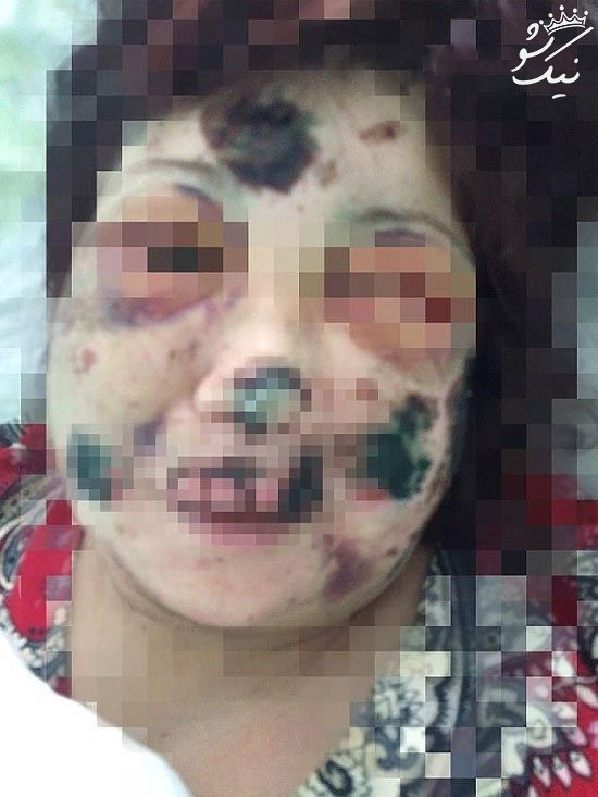 دختر جوانی که توسط دوست پسرش خورده شد +عکس