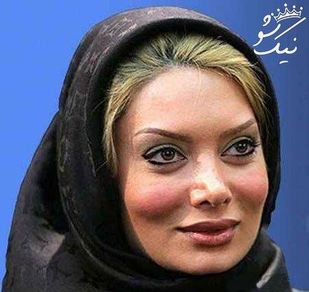 وقتی بازیگران زن ایرانی سراغ جراحی زیبایی می روند