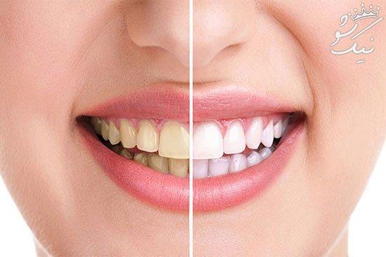 بهترین روش های موثر برای سفید کردن دندان ها