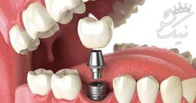مفصل درباره ایمپلنت دندانی و نحوه کاشت آن ها