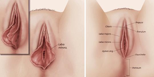 همه چیز درباره لابیاپلاستی Labiaplasty +عکس و فیلم