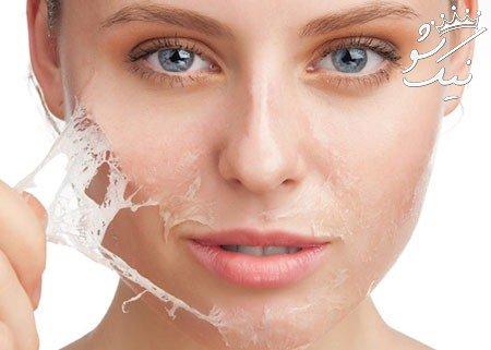 8 بهترین روش برای رفع خشکی پوست