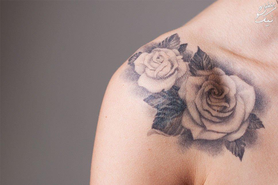 راهنمای کامل پاک کردن تاتو (خالکوبی) از روی بدن