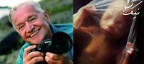 مراحل به دنیا آمدن بچه به روایت عکس