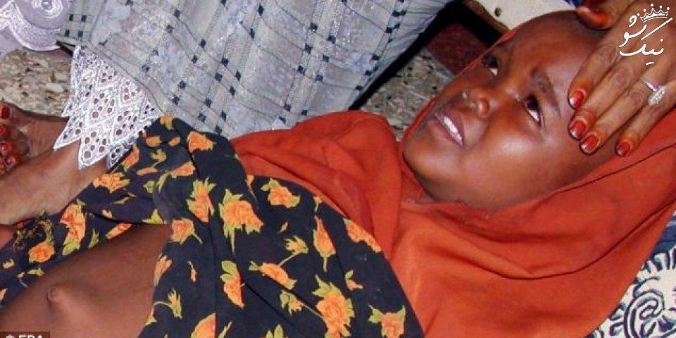 ختنه زنان در انتظار 200 میلیون زن و دختر