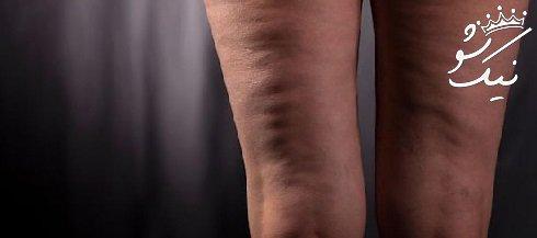 سلولیت ران و باسن   درمان قطعی سلولیت پشت ران