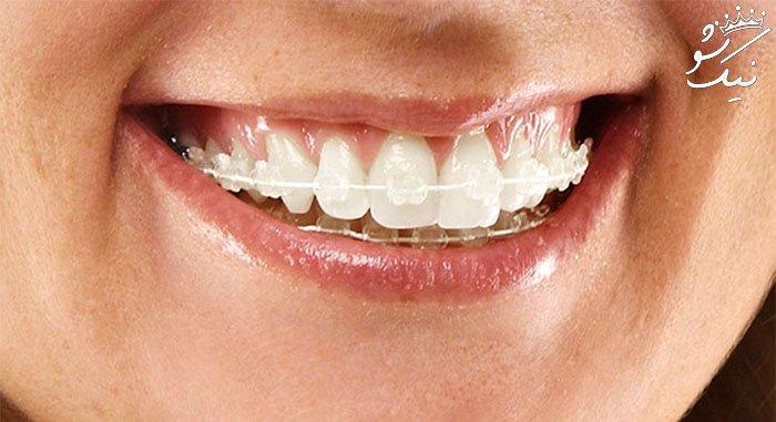 قیمت و هزینه ارتودنسی دندان سال 98 | متحرک | فک بالا | نامرئی