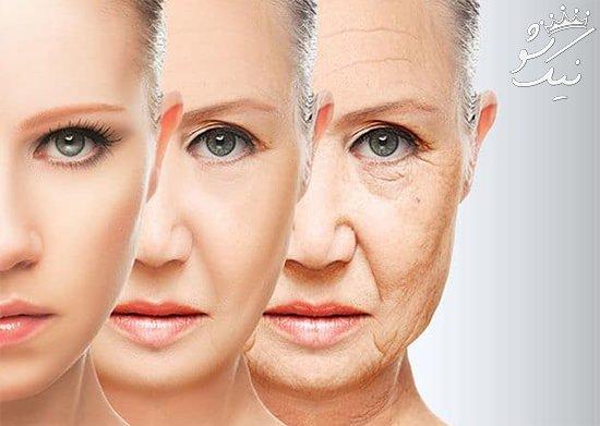 چرا خانم ها زودتر از آقایان پیر می شوند؟