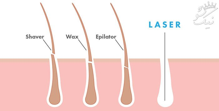 لیزر موهای زائد بیکینی | قیمت سال 98 | مراقبت بعد از لیزر