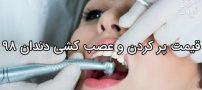 هزینه پرکردن دندان ۹۸ | قیمت و تعرفه عصب کشی پرکردن دندان