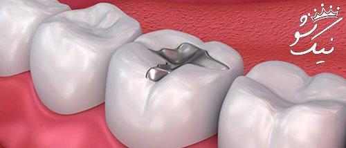 هزینه پرکردن دندان 98   قیمت و تعرفه عصب کشی پرکردن دندان