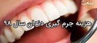 هزینه جرم گیری دندان ۹۸ | تعرفه دندان پزشکی