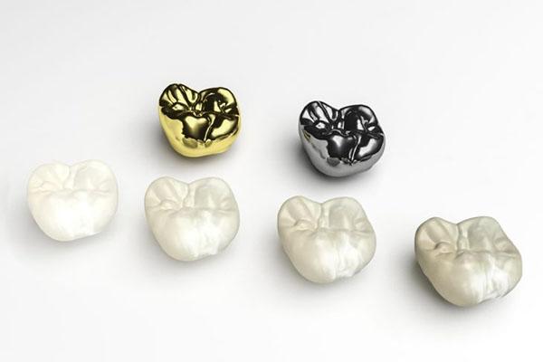 قیمت روکش دندان سال 98 | هزینه انواع روکش دندان