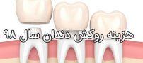 قیمت روکش دندان سال ۹۸ | هزینه انواع روکش دندان