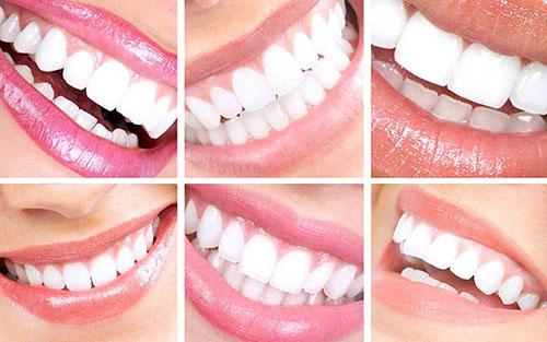 طرح لبخند چیست؟ | هزینه طرح لبخند چقدر است؟