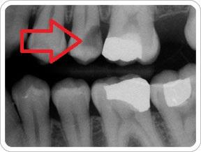 علائم پوسیدگی دندان در عکس رادیولوژی