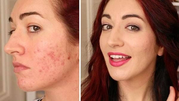 چگونه با استفاده از آرایش جای زخم را پنهان کنید؟