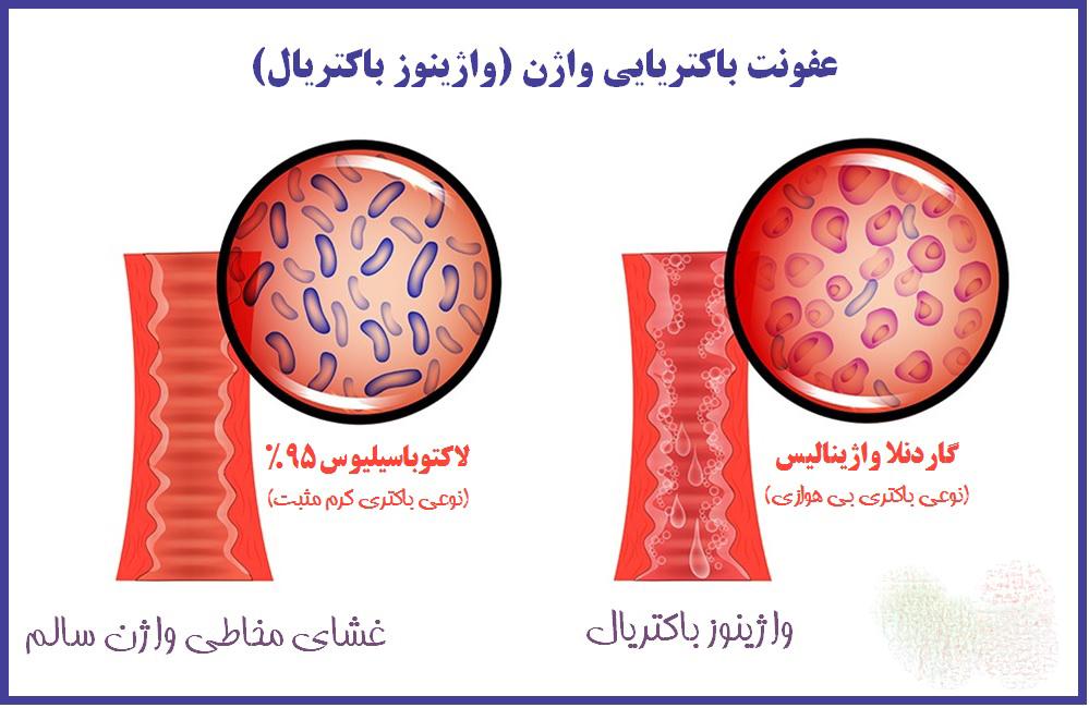 واژینوز باکتریال Bacterial vaginosis چیست | علل و درمان خانگی