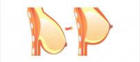 عمل ماموپلاستی Mammaplasty چیست و چقدر هزینه دارد؟