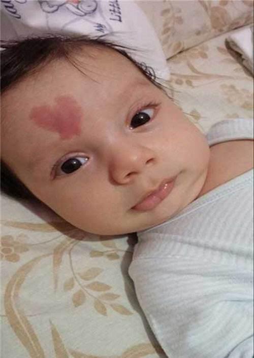 جنجال عکس قلب عاشقانه روی پیشانی این کودک