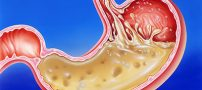 علائم برگشت اسید معده یا رفلاکس و راه درمان