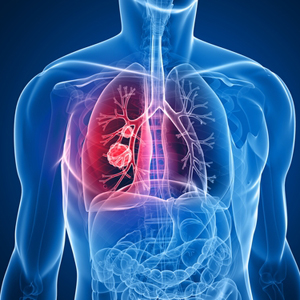 نشانه های اولیه سرطان ریه مهلک را بشناسید