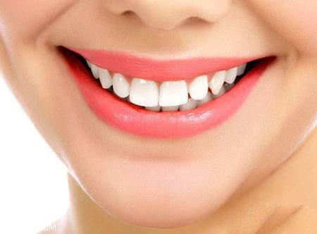 مفصل درباره لمینت دندان برای داشتن لبخند جادویی