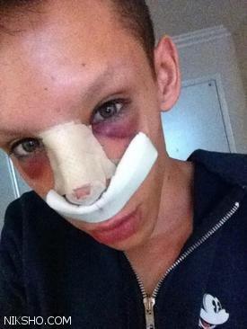 این پسر با 110 عمل جراحی اندام تناسلی خود را هم از بین برد