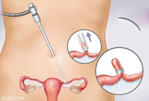 معرفی تمامی راه ها و ابزارها و داروهای جلوگیری از بارداری