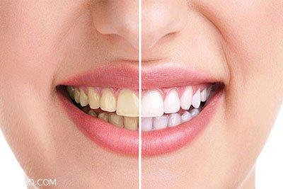 بررسی علت های اصلی زرد شدن دندان ها