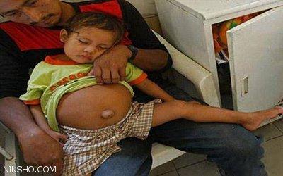 ماجرای جنجالی بارداری دختر 3 ساله +عکس