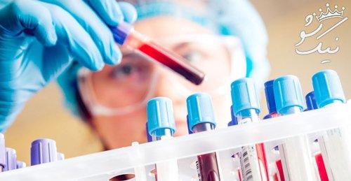 آزمایش های مهم که خانم ها باید برای سلامتشان انجام دهند