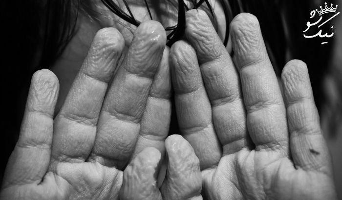چرا انگشتان بعد از خیس شدن دچار چروک می شوند؟
