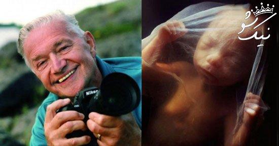 مراحل کامل به دنیا آمدن بچه بصورت تصویری