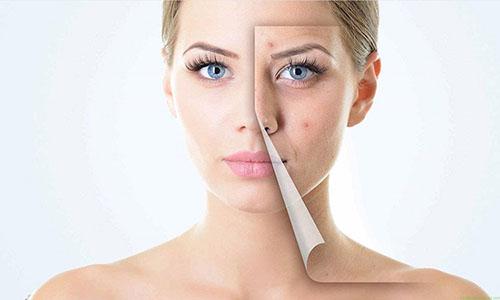 بهترین و آسان ترین روش برای از بین بردن جوش صورت