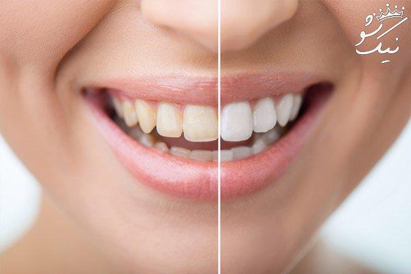 هزینه بلیچینگ دندان سال 98 | قیمت بلیچینگ تعرفه دندان پزشکی