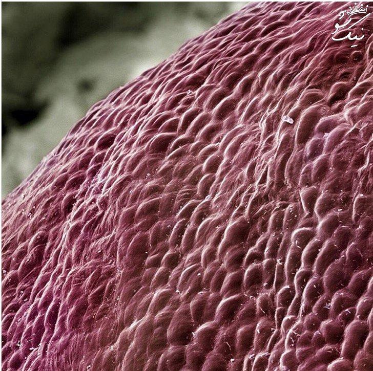 تصاویر دنیای شگفت انگیز ما زیر میکروسکوپ