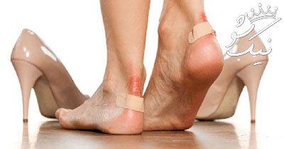 بهترین راه ها برای درمان تاول در خانه