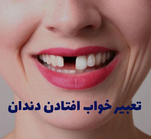 تعبیر خواب افتادن دندان ،دندان نیش و آسیاب و پوسیده