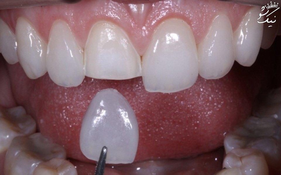قیمت لمینت دندان در سال 98 چقدر است؟